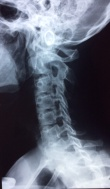 Rachis cervical Spin'Dynamic